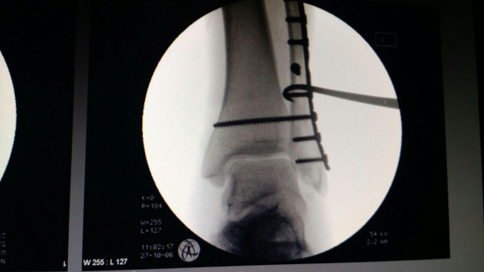 Sindesmosis y fractura de tobillo